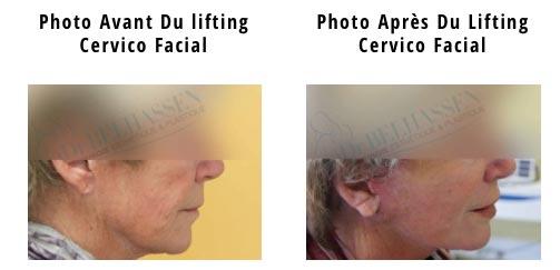 Une simple liposuccion ne garantit pas un résultat optimal, dans ce cas le chirurgien pourra suggérer dans le même temps la réalisation d'un lifting cervico-facial afin de perfectionner le résultat...